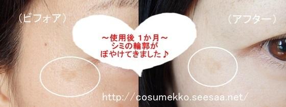シミウス 口コミ.jpg